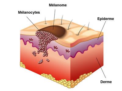 Cancer de la peau